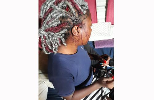 Windhoek woman brutally beaten