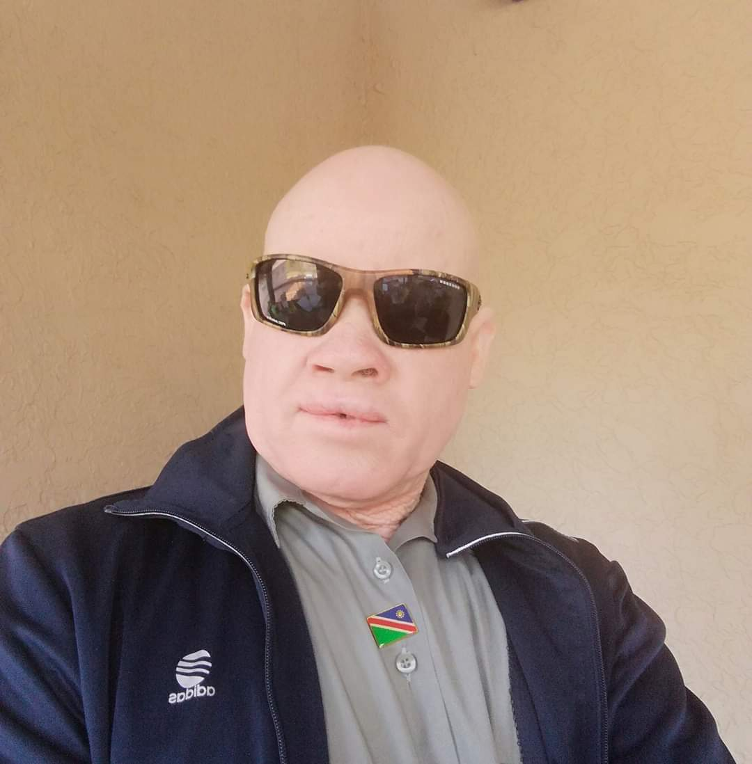 Children with albininism denied by their fathers